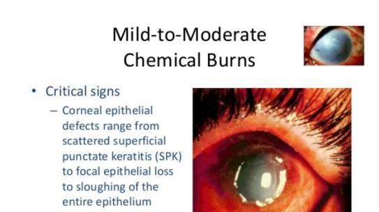 Chemical Burns to the Eye