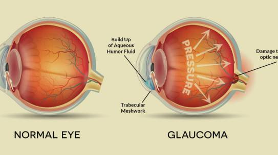 Could you be affected by glaucoma?