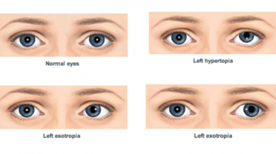 Squint or strabismus treatment.