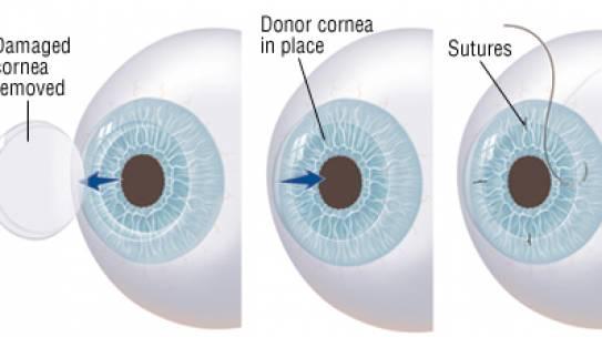 What is a cornea transplant?